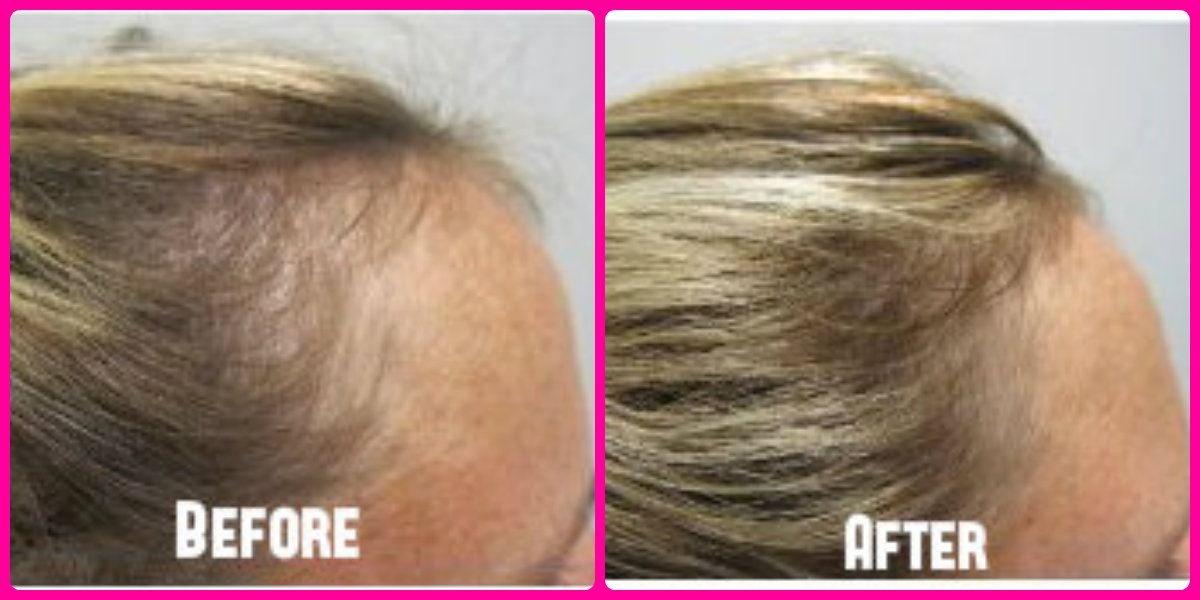 Before and after of hair regrowth.