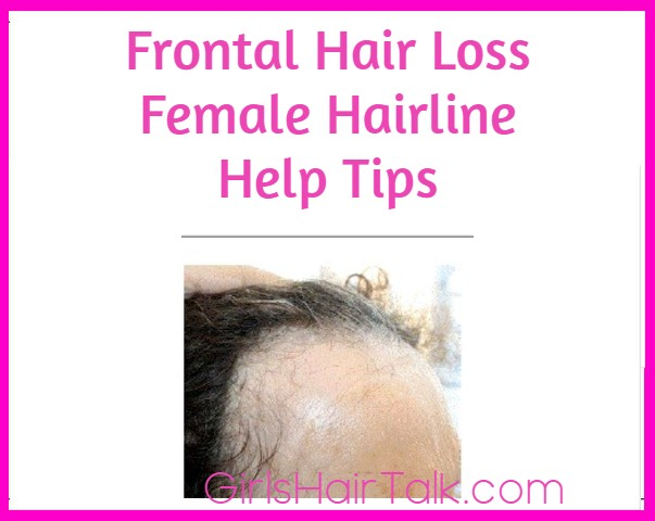 PCOS Hair Loss Regrowth Success For Women Tips