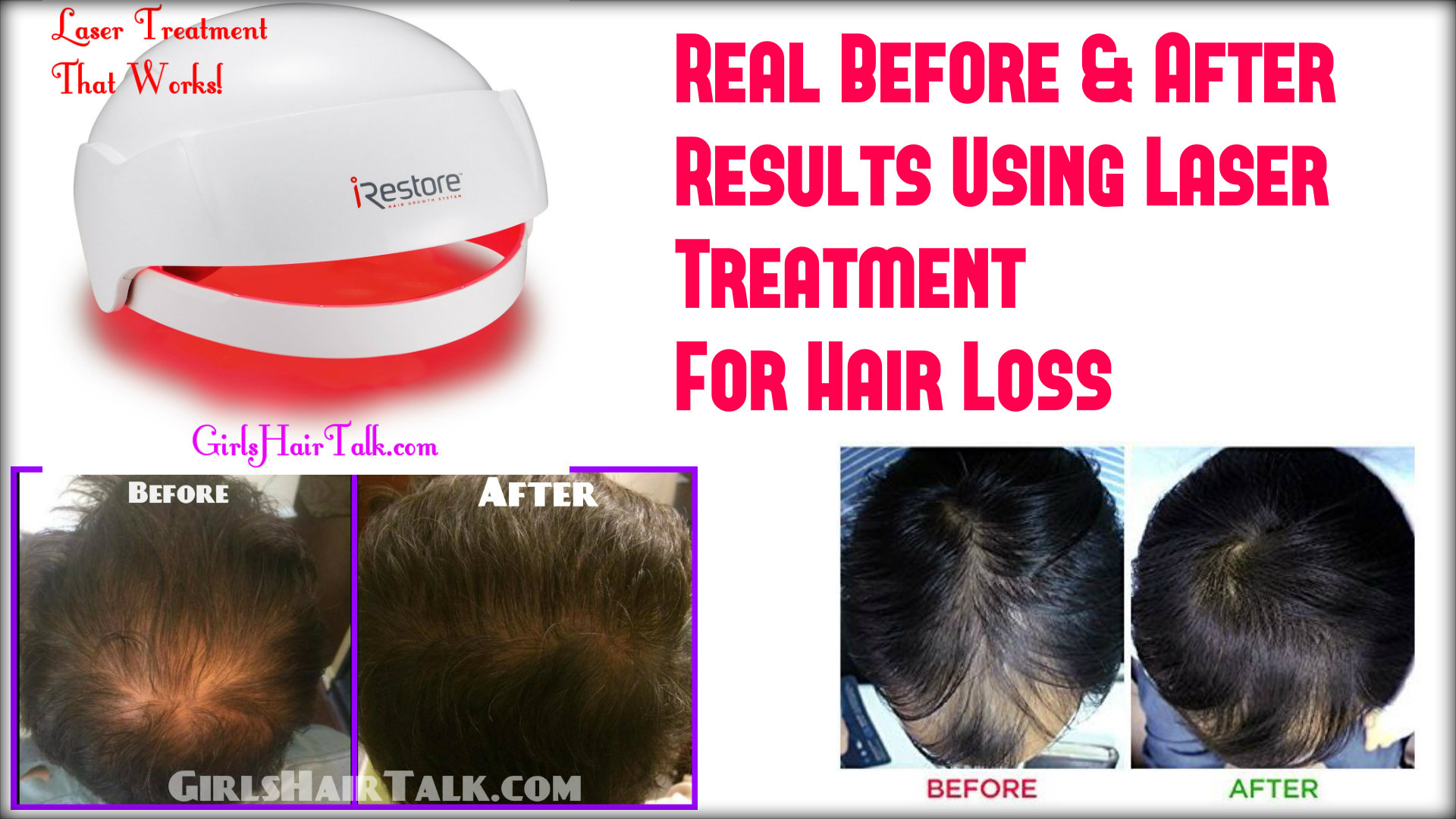 Laser treatment for hair loss does it really work my choice of which red light laser hair treatment therapy goes to irestore for their red light laser therapy helmet the reason is their technology really solutioingenieria Gallery