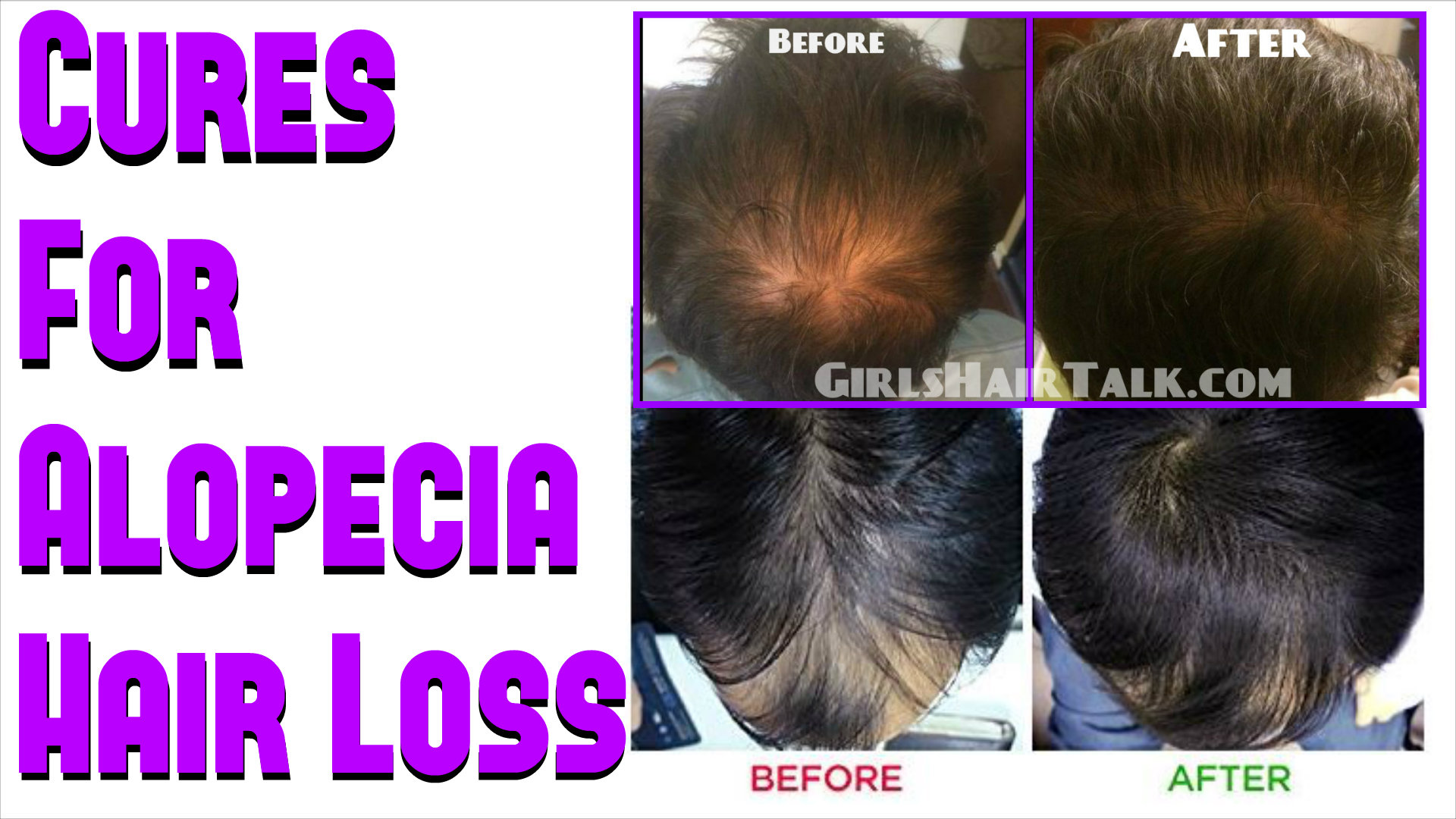 What Is Alopecia And How To Treat It Naturally recommend