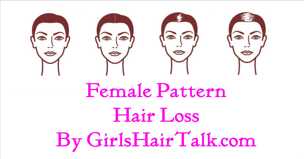 Female hair loss chart with pictures of the various stages regarding female hair loss.