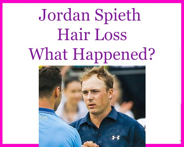 Jordan Spieth Hair loss blowing in the wind.