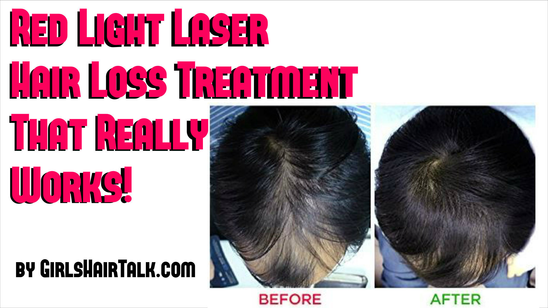Laser treatment for hair loss does it really work laser treatment for hair loss works as long as it is low level treatment therapy technology when people hear the word laser for hair they automatically solutioingenieria