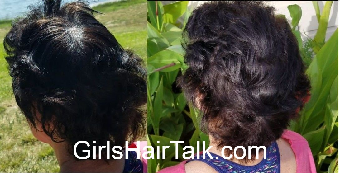Before and after hair pictures of women's hair growth from using this natural hair regrowth treatment.
