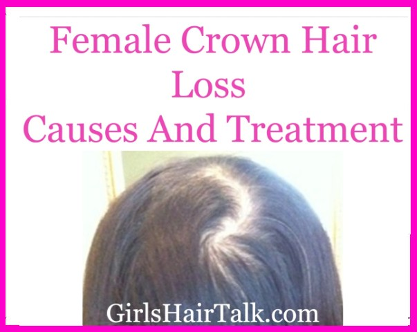 Women's hair loss thinning on top of head.