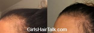 Before and after of hair loss and regrowth after using treatment bottle for women.