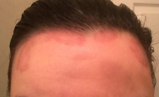 Psoriasis infected scalp showing redness and hair loss.